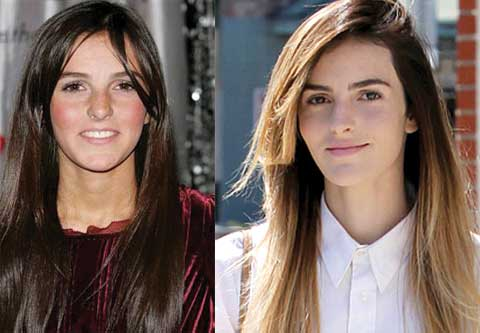 ali lohan plastic surgery before and after photos 2017