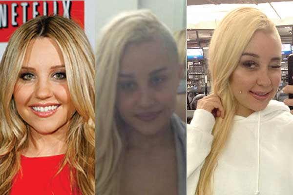 amanda bynes plastic surgery before and after photos 2017