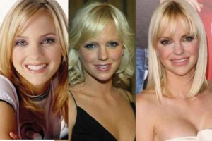 anna faris plastic surgery before and after photos