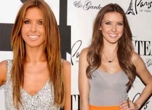 audrina patridge plastic surgery before and after photos