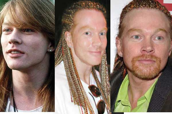 axl rose plastic surgery before and after photos 2017