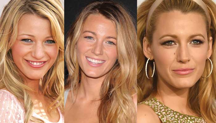 blake lively plastic surgery before and after photos 2019