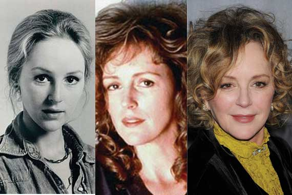 bonnie bedelia plastic surgery before and after photos 2017