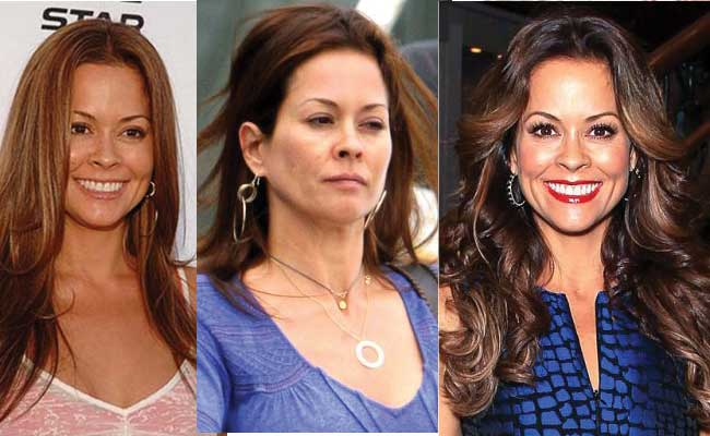 brooke burke plastic surgery before and after photos 2021