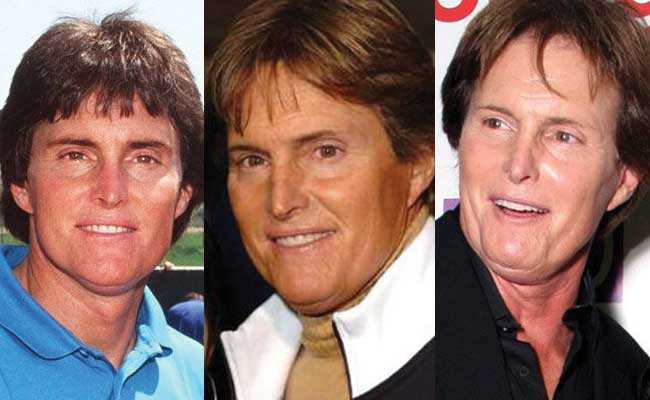 bruce jenner plastic surgery before and after photos 2017