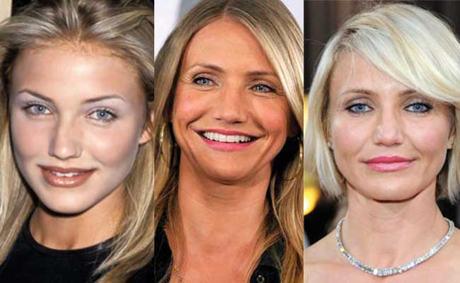 cameron diaz plastic surgery before and after photos 2017
