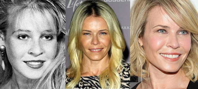 chelsea handler plastic surgery before and after photos 2020