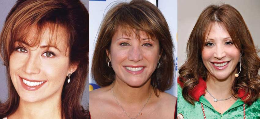 cheri oteri plastic surgery before and after photos 2017