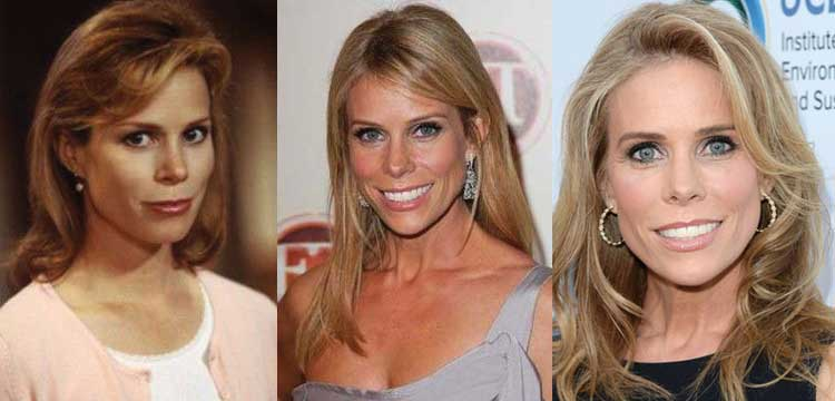 cheryl hines plastic surgery before and after photos 2017