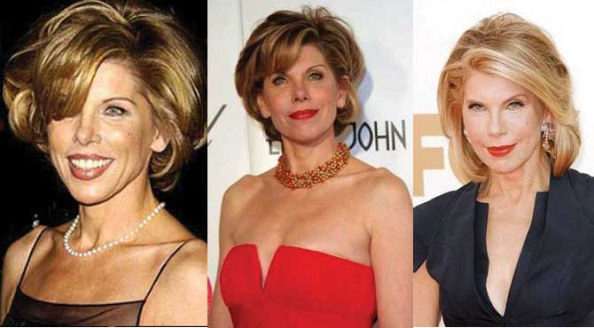 christine baranski plastic surgery before and after photos 2021
