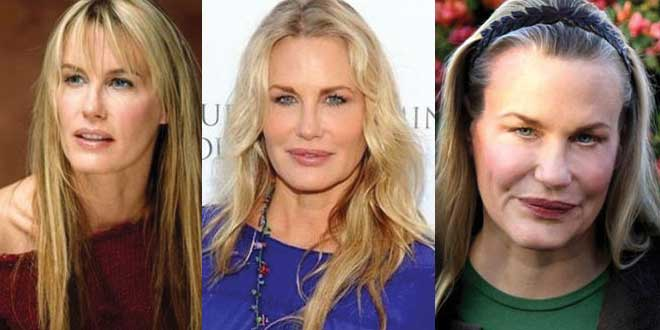 daryl hannah plastic surgery beforea and after photos 2017