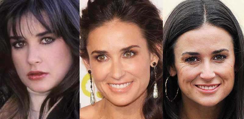 demi moore plastic surgery before and after photos 2017