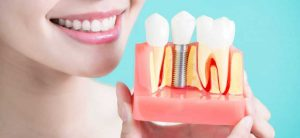 dental implant cost in usa