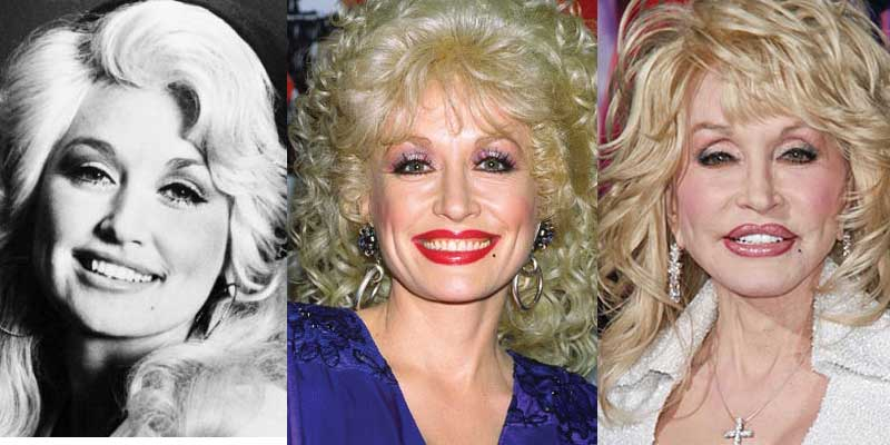 dolly parton plastic surgery before and after photos 2017