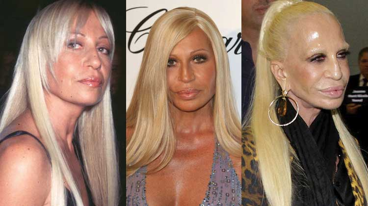 donatella versace plastic surgery before and after photos 2017