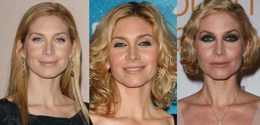 elizabeth mitchell plastic surgery before and after photos 2021