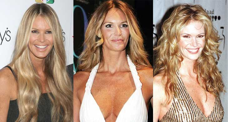 elle mcpherson plastic surgery before and after photos 2017