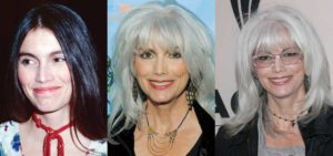 emmylou harris plastic surgery before and after photos