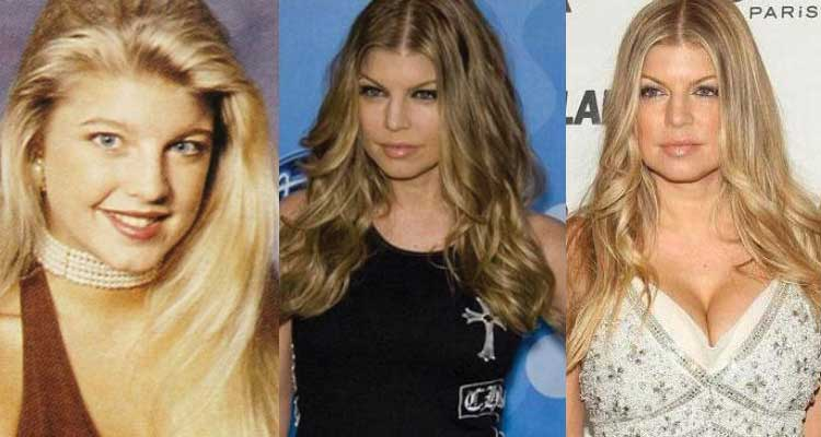 fergie plastic surgery before and after photos 2017