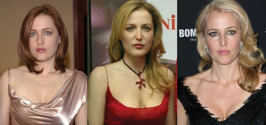 gillian anderson plastic surgery before and after photos 2017
