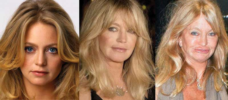 goldie hawn plastic surgery before and after photos 2017