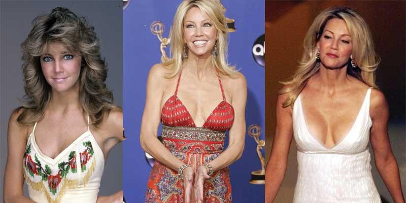 heather locklear plastic surgery before and after photos 2017