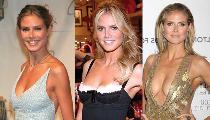 heidi klum plastic surgery before and after photos 2017