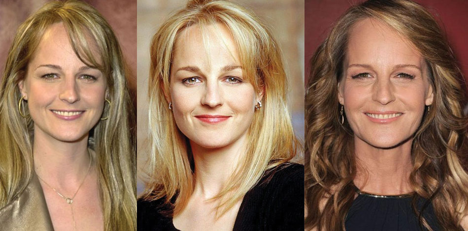 helen hunt before and after plastic surgery 2020