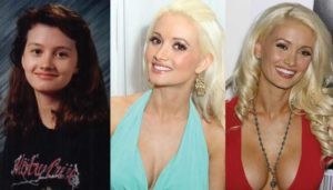 holly madison plastic surgery before and after photos