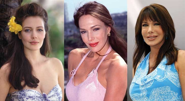 hunter tylo plastic surgery before and after photos 2021