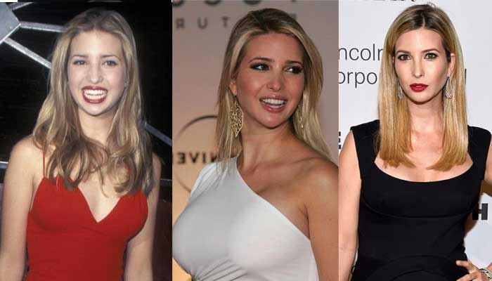 ivanka trump plastic surgery before and after photos 2017