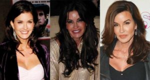 janice dickinson plastic surgery before and after photos