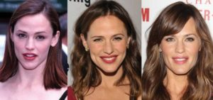 jennifer garner plastic surgery before and after photos