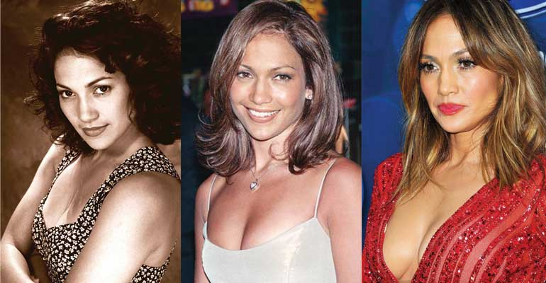jennifer lopez plastic surgery before and after photos 2017