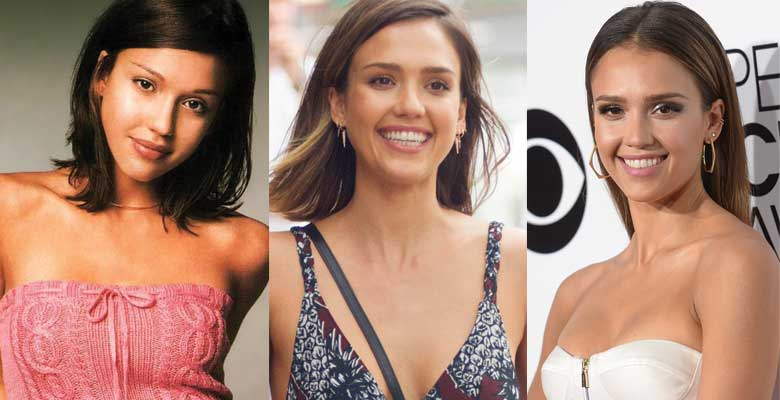 jessica alba plastic surgery before and after photos 2017