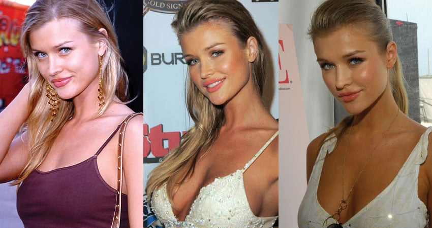 joanna krupa before and after plastic surgery