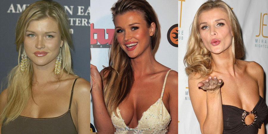 joanna krupa plastic surgery before and after 2019