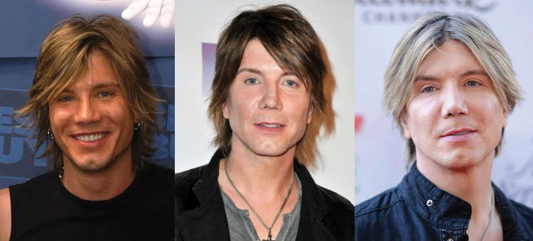 john rzeznik plastic surgery before and after 2017