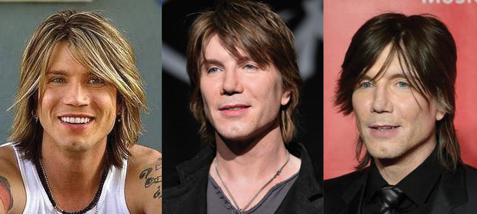 johnny rzeznik plastic surgery before and after 2019