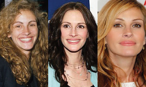 julia roberts plastic surgery before and after photos 2017