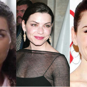 Julianna Margulies Plastic Surgery