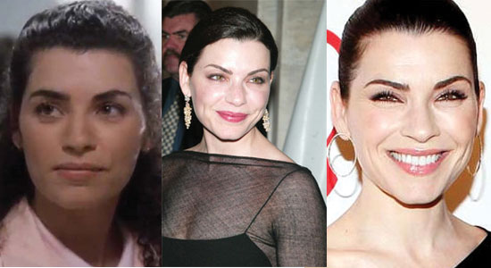 julianna margulies plastic surgery before and after photos 2021