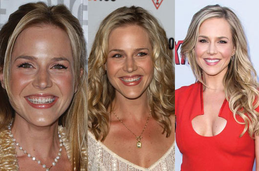 julie benz plastic surgery before and after photos 2017