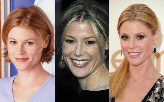 julie bowen plastic surgery before and after photos 2020
