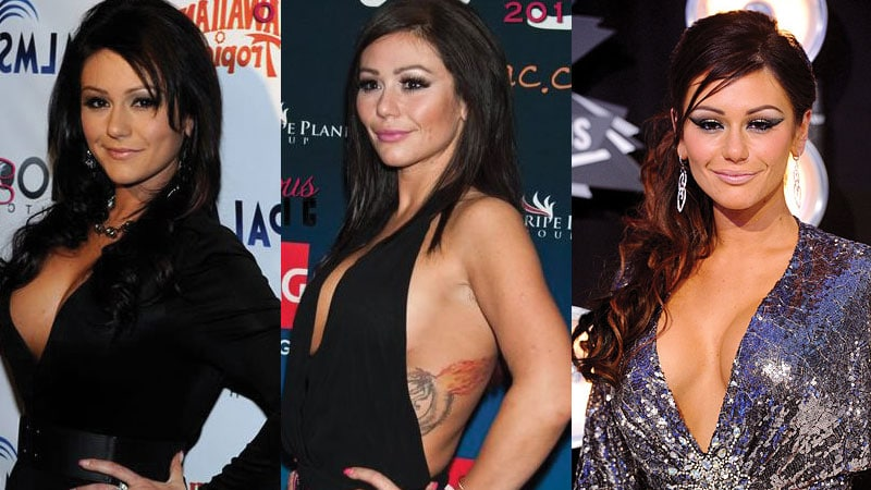 jwoww before and after plastic surgery 2017