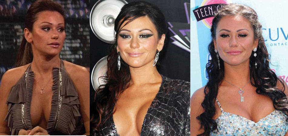 jwoww plastic surgery before and after 2017