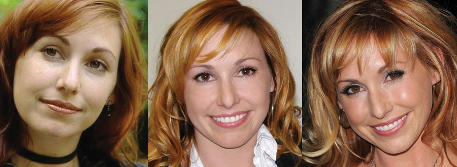 kari byron plastic surgery before and after 2017