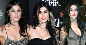 kat von d before and after plastic surgery