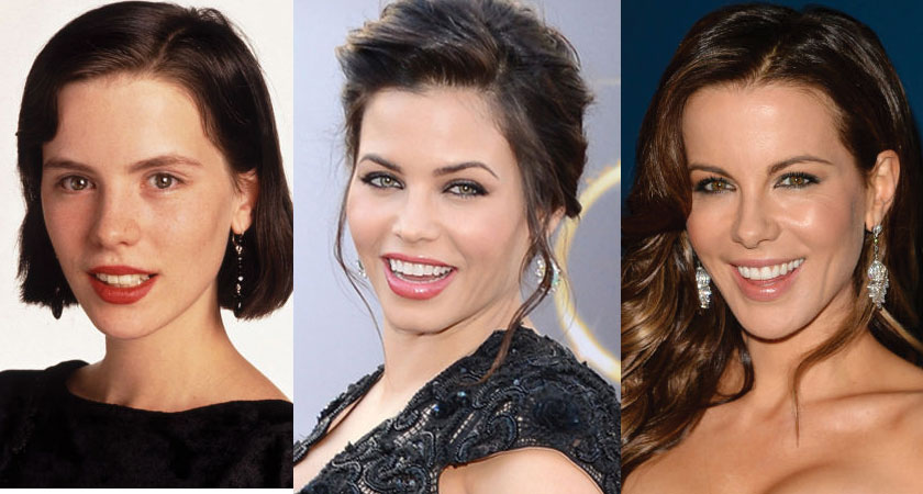 kate beckinsale before and after plastic surgery 2018