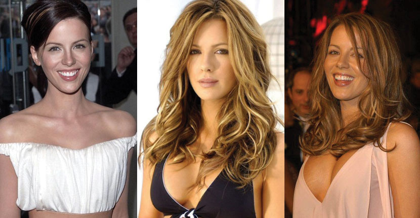 kate beckinsale plastic surgery before and after 2018